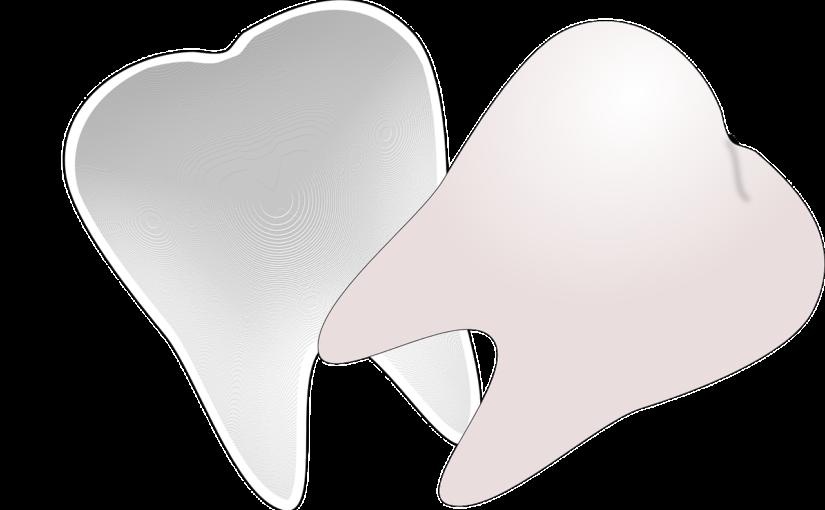 Prześliczne urodziwe zęby dodatkowo olśniewający uroczy uśmieszek to powód do płenego uśmiechu.